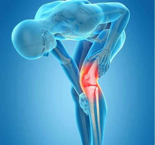 Reasons For Knee Replacement Surgery