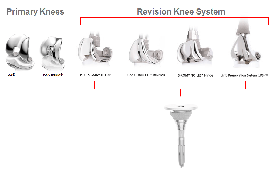 Revision knee system