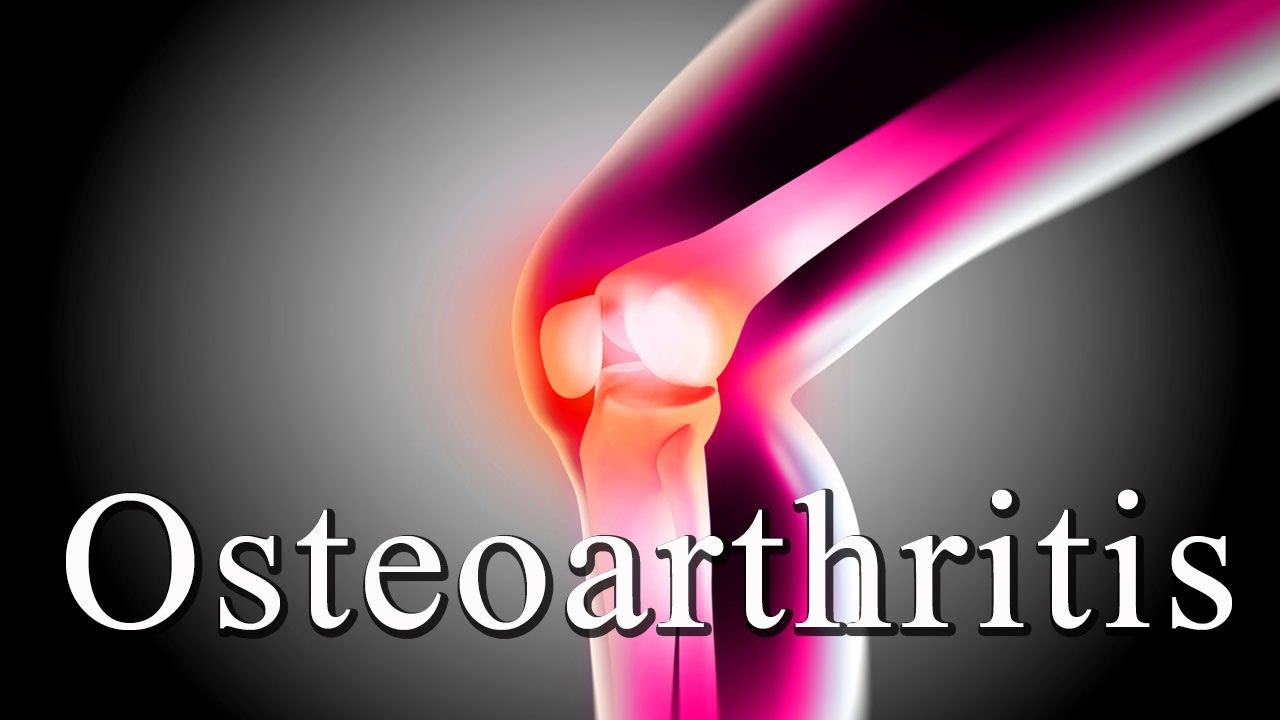 Treatment of osteoarthritis without operation