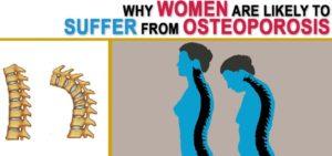 Whyosteoporosis