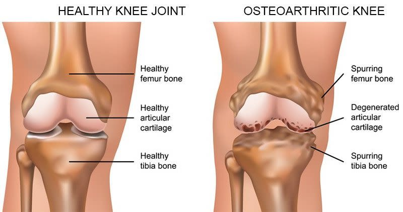 arthritic knee blog