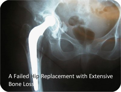 failed hip replacement