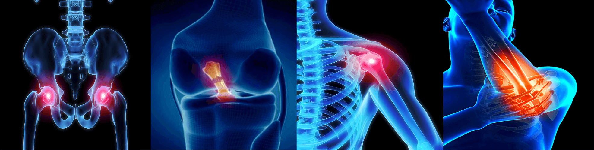 walk well joint replacement